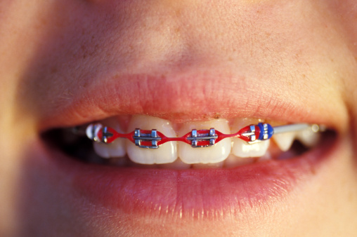 Close up of Winnipeg orthodontist patient with red colored braces by Dr. Tim Dumore & Team.